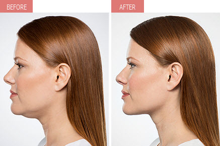 What exactly is KYBELLA?