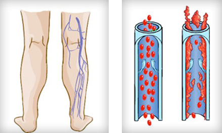 Deep Leg Vein Problems