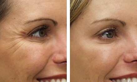 Midwest Vein and Laser - Dayton Ohio > Cosmetic Service